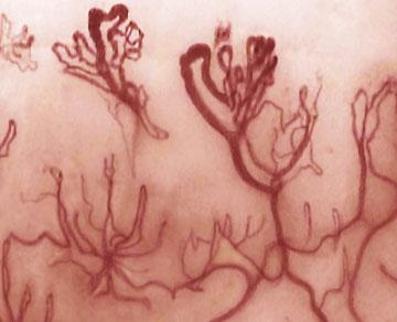 dermoscopia sclerodermia