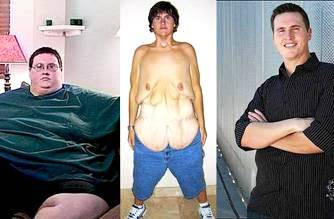 dieta_chirurgia
